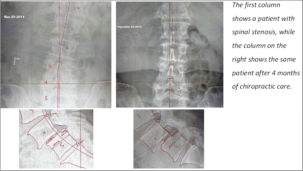 Spinal Stenosis 2