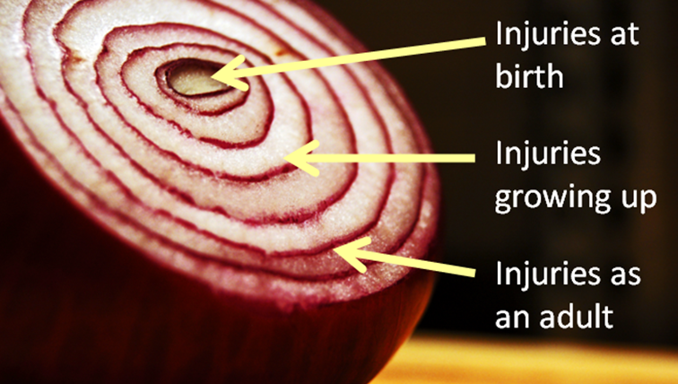 Life is Like an Onion Pic3